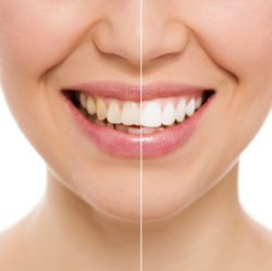 teeth whitening oakton va cosmetic dentst dr ahrabi