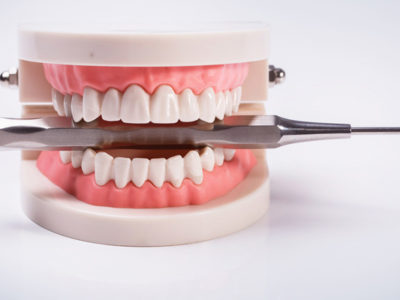 How Gum Disease Affects Your Overall Health